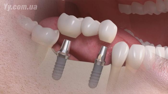 Импланты зубов виды и цены в краснодаре